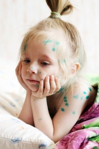 chicken-pox-dreamstime_14637911-200x300
